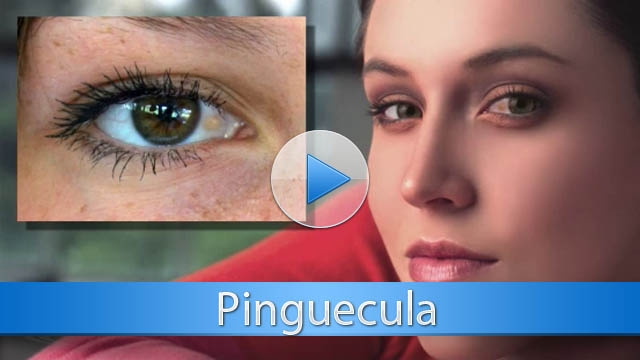 pinguecula treatment and information | westechester eye surgeons, Skeleton